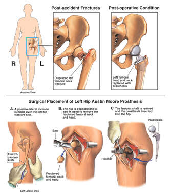 Hip Injury - Fractured Femoral Neck with Prosthetic Replacement Surgery