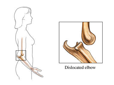 Elbow Dislocation: Female