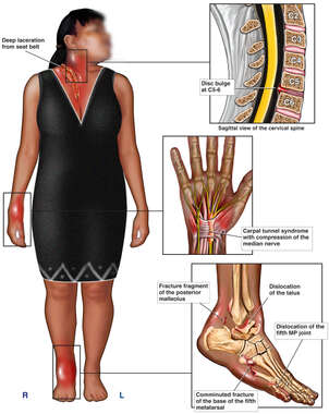 Clothed Black Female Figure with Post-accident Injuries to the Cervical Spine, Right Hand, Ankle and Foot