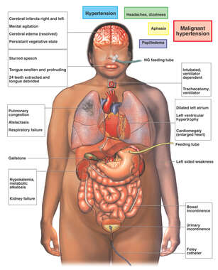 Medical Condition Including Hypertension and Papilledema