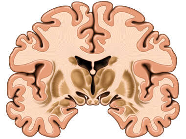 Brain, Anterior Cut-away View