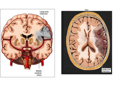 Occlusion of the Left Middle Cerebral Artery