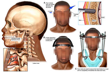 Cervical Spine Fractures with Application of Halo Fixation