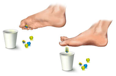 Plantar Fasciitis: Treatment Exercise