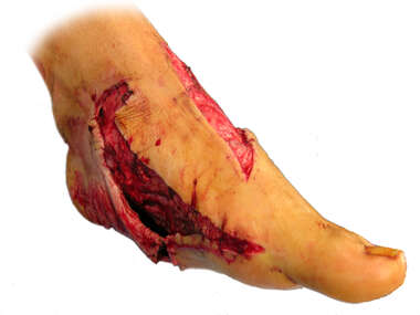 Degloving Injury to the Foot