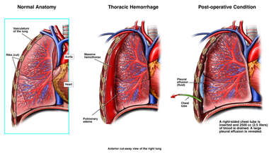 Massive Thoracic Hemorrhage Following Prolonged Overdose of Anticoagulants