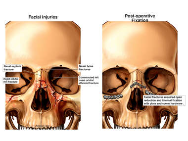 Facial Injuries and Surgical Fixation