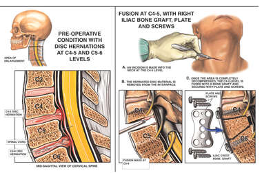C4-5 and C5-6 Disc Protrusions with Spinal Fusion Surgery