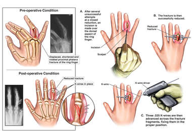 Right Ring Finger Fracture with Surgical Fixation