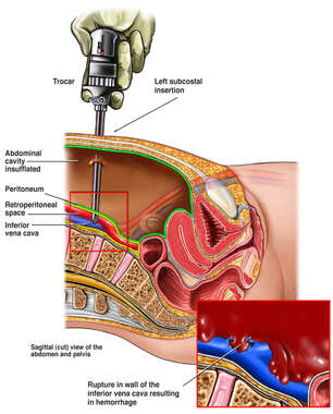 Trocar Insertion and Subsequent Injury