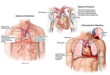 Coronary Bypass Surgery with Post-operative Hemorrhage