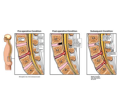 Progression of L4-5 Disc Herniation