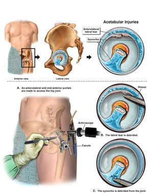 Left Hip Arthroscopy