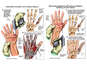 Surgical Repairs of the Left Hand