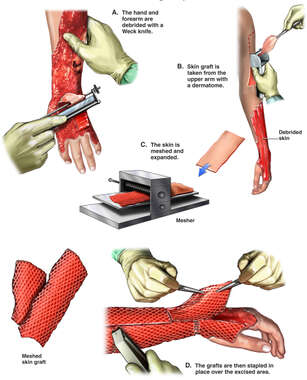 Excision and Skin Grafing Repair of the Left Arm