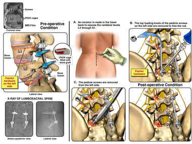 Left Lower Back Pain with Hardware Removal