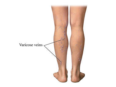 Varicose Veins: External View