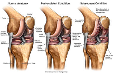 Chondromalacia - Progression of Right Knee Injury