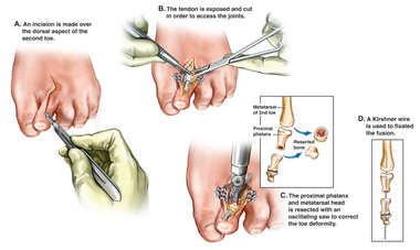 Surgical Correction of Toe Deformity