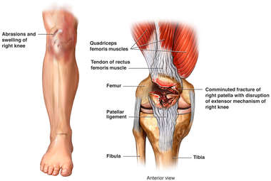 Accident-related Fractures of the Right Patella