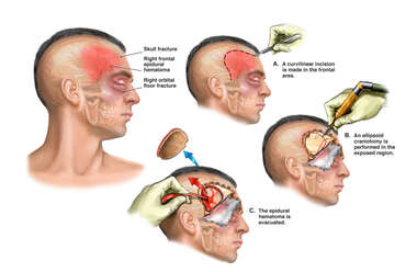 Closed Head Injury with Surgical Craniotomy