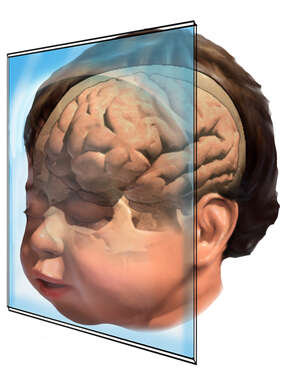 Infant Coronal Brain Orientation