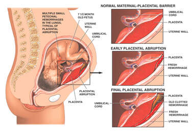 Post-traumatic Placental Abruption