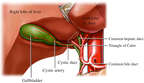 Gallbladder: Triangle of Calot