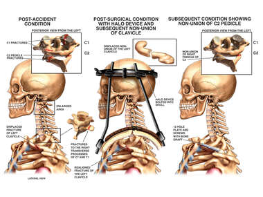 Cervical Spine Injury with Placement of Halo Vest