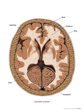 Normal Anatomy of the Brain