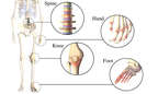 Joints Often Affected by Osteoarthritis