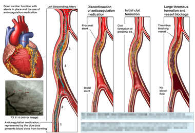 Coronary Artery Stenosis with Placement of Multiple Stents