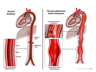 Thoraco-abdominal Aortic Aneurysm