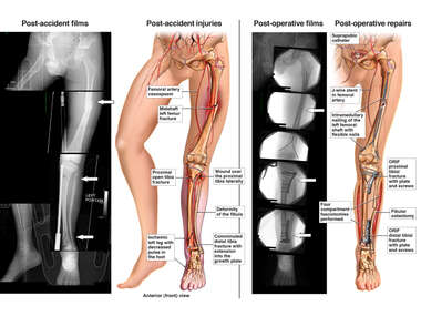 Left Leg Injuries with Surgical Fixation