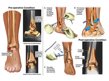 Right Ankle Injuries with Open Reduction and Internal Fixation