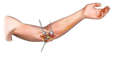 Transverse Position of Ulnar Nerve