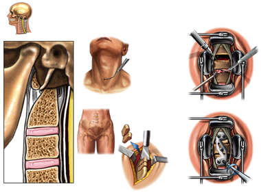 C5-6 and C6-7 Anterior Cervical Discectomy and Spinal Fusion