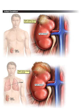 Progression of Right Kidney Mass