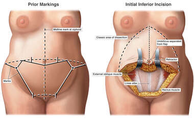 Abdominoplasty and Lipectomy Procedures