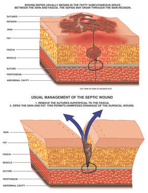 Septic Surgical Wound Management