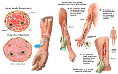 Compartment Syndrome of the Right Arm with Multiple Surgical Fasciotomies