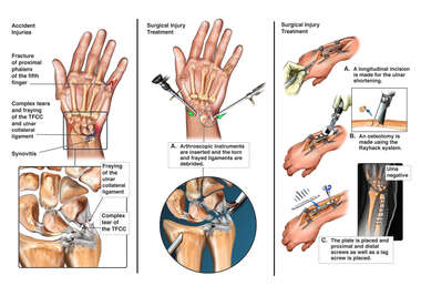 Wrist Accident Injury/ Arthroscopic and Open Surgical Treatments