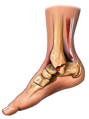 Tear of Achilles Tendon and Medial Malleolar Fracture