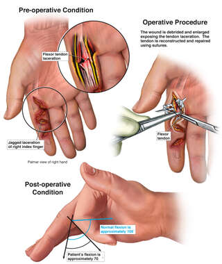 Traumatic Finger Lacerations with Surgical Repair and Permanent Impairment