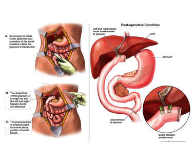 Hepaticojejunostomy Repair of Surgical Bile Duct Injury