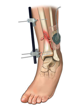 External Fixation of Tibia