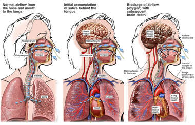 Accumulation of Saliva with Blockage of Airway