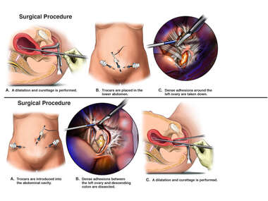 Dilation and Curettage Procedures