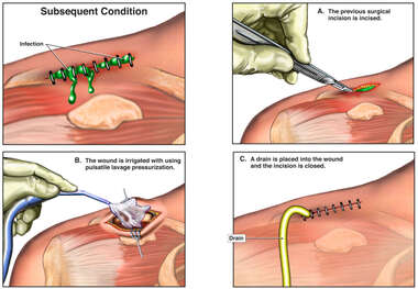 Wound Infection with Irrigation and Debridement
