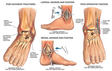 Left Tri-malleolar Ankle Fractures with Surgical Fixation